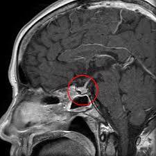 лечение опухолей гипофиза в Израиле фото 2