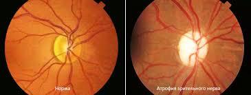 лечение атрофии зрительного нерва в Израиле фото 2