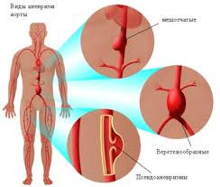 лечение аневризмы аорты в Израиле фото 2