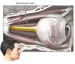 лечение атрофии зрительного нерва в Израиле