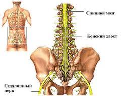 лечение синдрома конского хвоста в Израиле