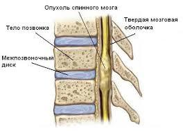 лечение опухолей спинного мозга в Израиле