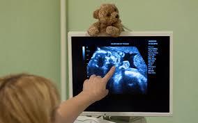 лечение пороков сердца у детей в Израиле фото 1