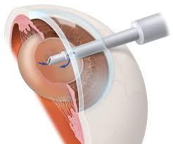 лечение катаракты в Израиле фото 2