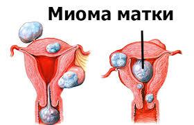 лечение миомы матки в Израиле фото 1