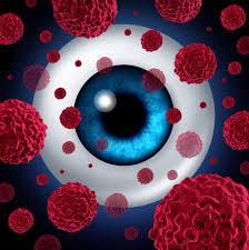 лечение ретинобластомы в Израиле