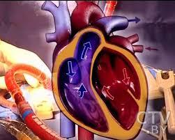 лечение пороков сердца у детей в Израиле