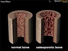 лечение несовершенного остеогенеза в Израиле