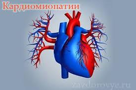 лечение кардиомиопатий в Израиле
