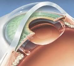 Имплантация искусственного хрусталика в Израиле