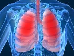 лечение ХОБЛ (хронических обструктивных болезней легких) в Израиле