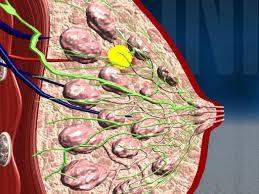лечение фиброзно-кистозной мастопатии в Израиле