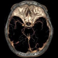 лечение аневризмы сосудов головного мозга в Израиле фото 1