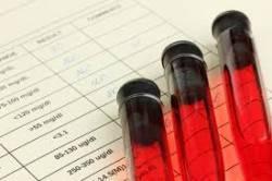 Лечение миелобластного лейкоза в Израиле