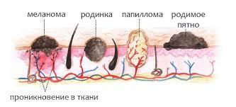 как быстро развивается меланома из родинки