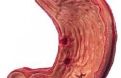 лечение лейомиосаркомы в израиле
