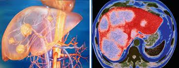 диагностика гепатоцеллюлярной карциномы