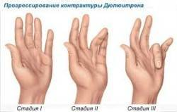 диагностика контрактуры Дюпюитрена в Израиле