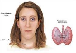 диагностика базедовой болезни в Израиле