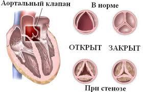 лечение аортального стеноза в Израиле