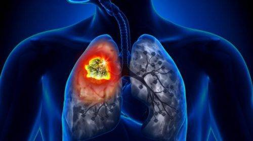 сколько живут с раком легких