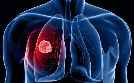 Периферический рак лёгкого сколько живут — ooncologiya