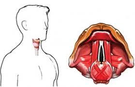 диагностика паралича голосовых связок в Израиле
