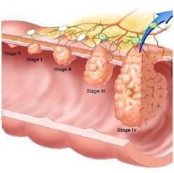 лечение анального рака