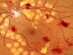 Диагностика ретинопатии в Тель-Авиве