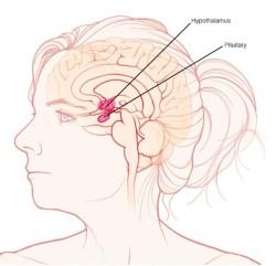 cyst-pituitary-brain