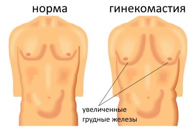 ginecomastiya