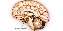adenoma-gipofiza