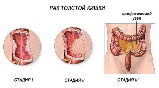 рак толстой кишки стадии