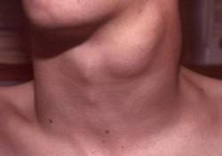 thyroid-cancer-symptoms