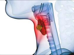 thyroid_cancer