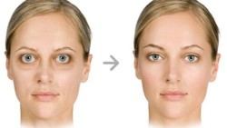 thyroid_eye_disease-1740x980
